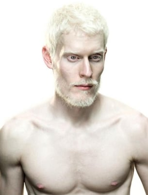 Origin of Caucasian Race and Albinism