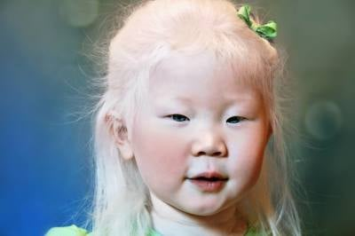 Origin of Caucasian Race and Albinism